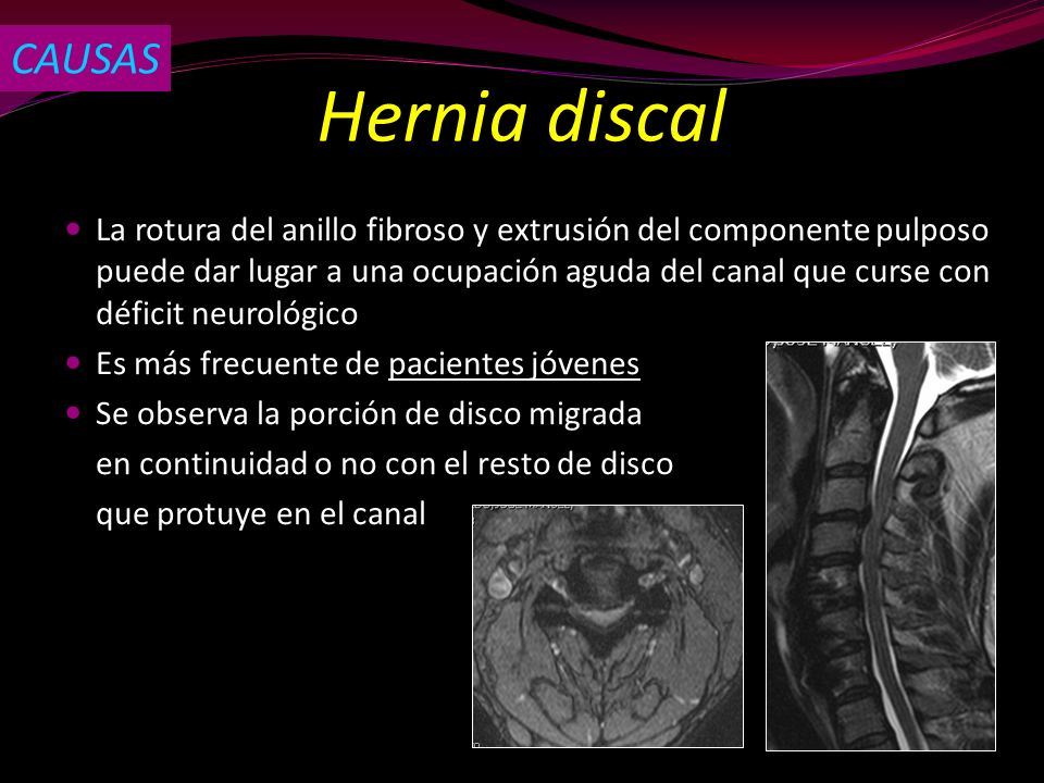 CAUSAS Hernia discal.