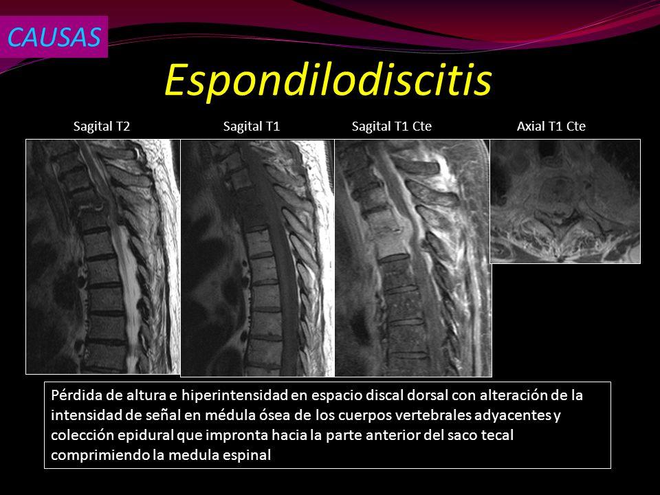 Espondilodiscitis CAUSAS