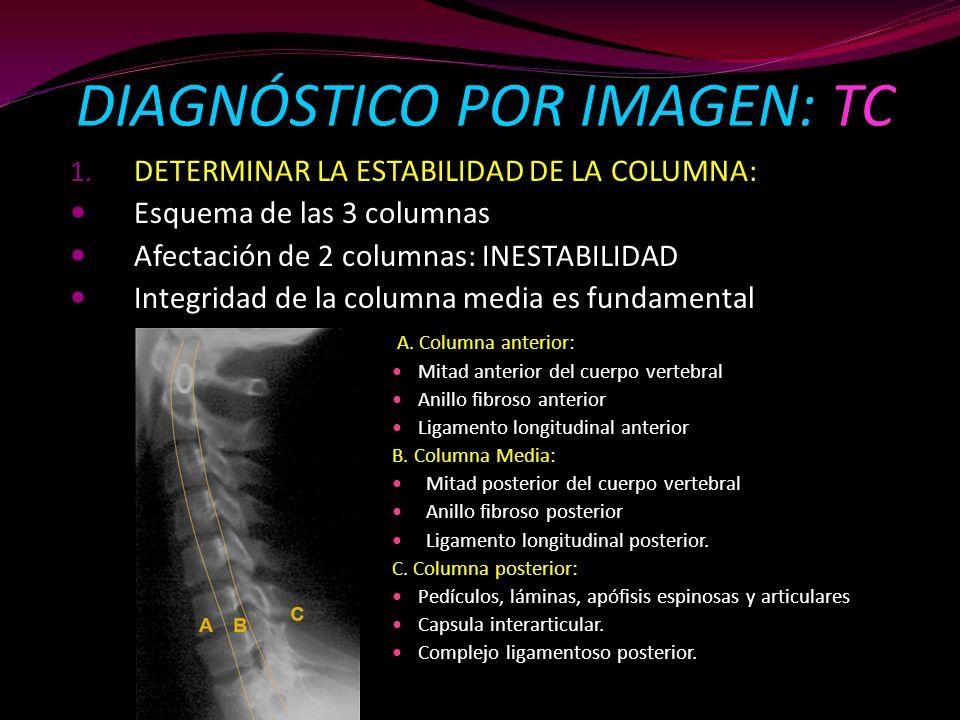 DIAGNÓSTICO POR IMAGEN: TC