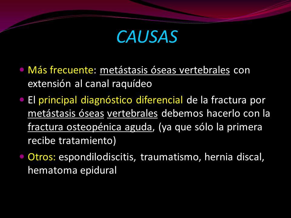 CAUSAS Más frecuente: metástasis óseas vertebrales con extensión al canal raquídeo.