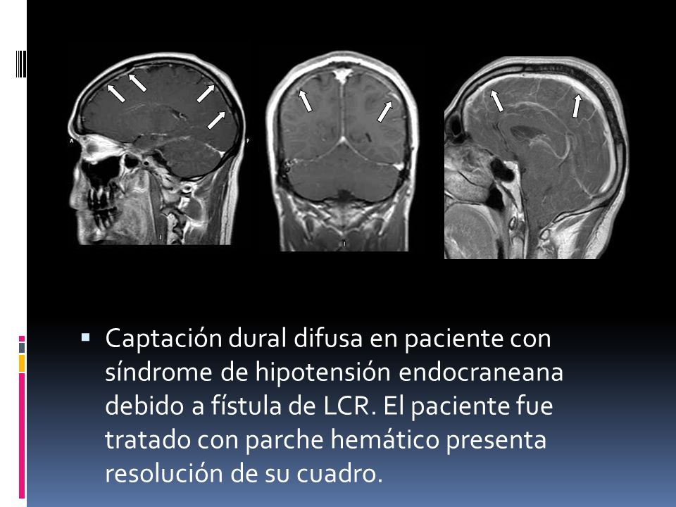 Captación dural difusa en paciente con síndrome de hipotensión endocraneana debido a fístula de LCR.