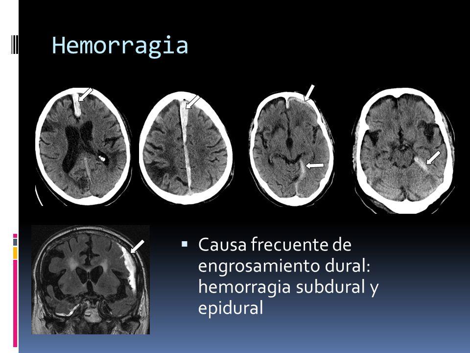 Hemorragia Causa frecuente de engrosamiento dural: hemorragia subdural y epidural
