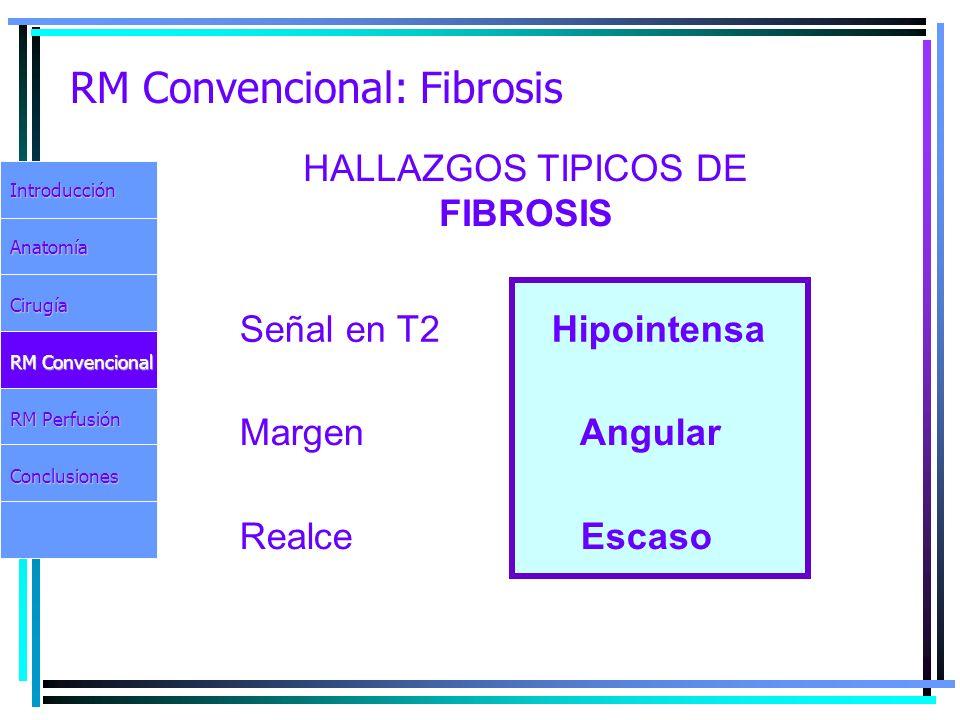RM Convencional: Fibrosis