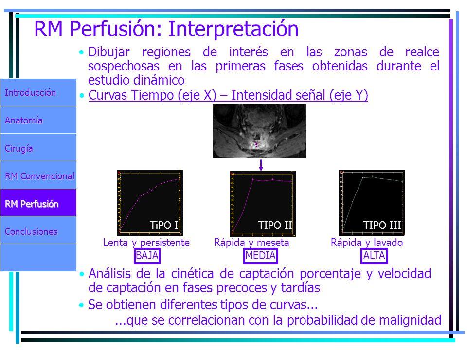 RM Perfusión: Interpretación