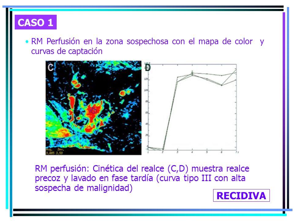 CASO 1 RM Perfusión en la zona sospechosa con el mapa de color y curvas de captación.