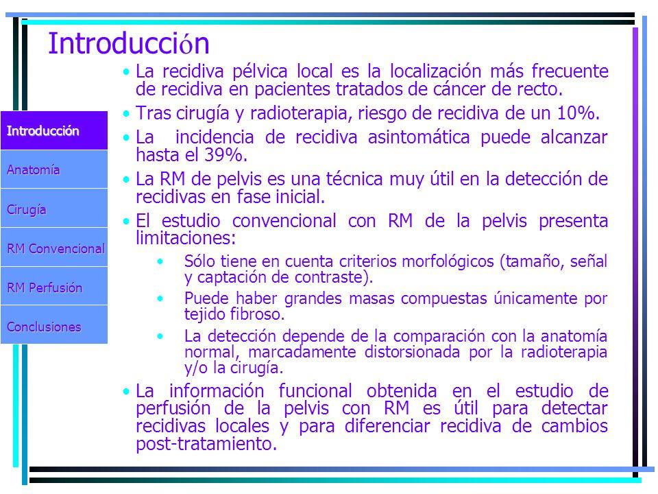 Introducción La recidiva pélvica local es la localización más frecuente de recidiva en pacientes tratados de cáncer de recto.