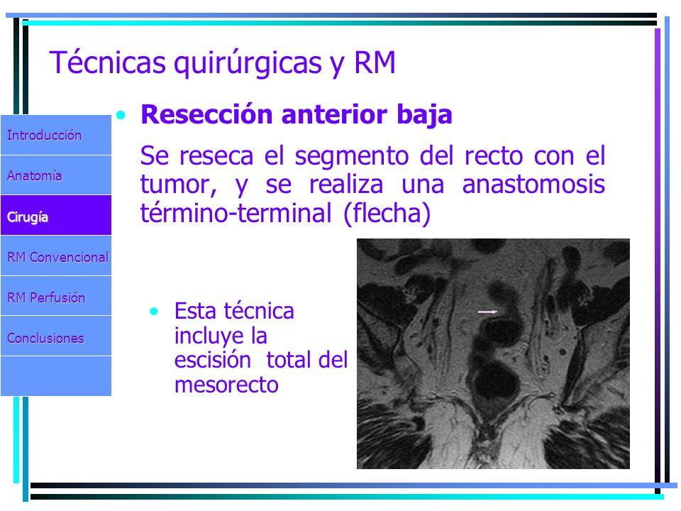 Técnicas quirúrgicas y RM