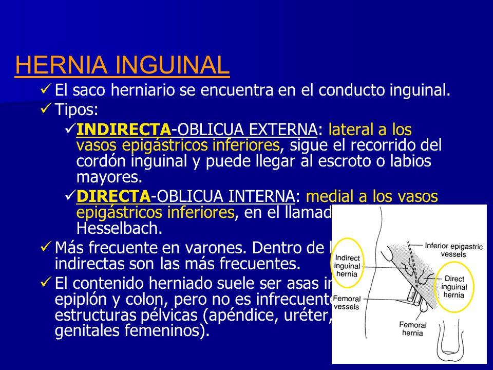 HERNIA INGUINAL El saco herniario se encuentra en el conducto inguinal. Tipos: