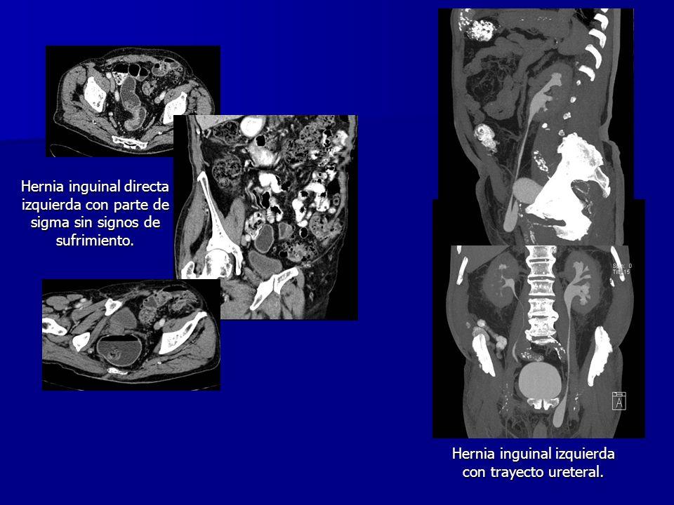 Hernia inguinal izquierda con trayecto ureteral.