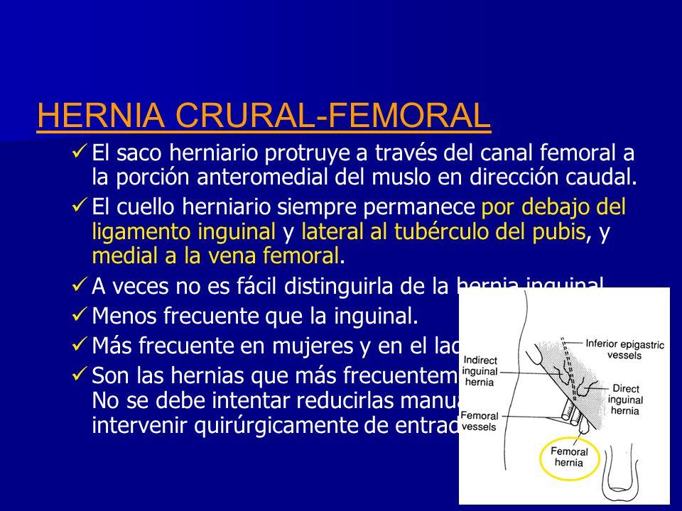 HERNIA CRURAL-FEMORAL