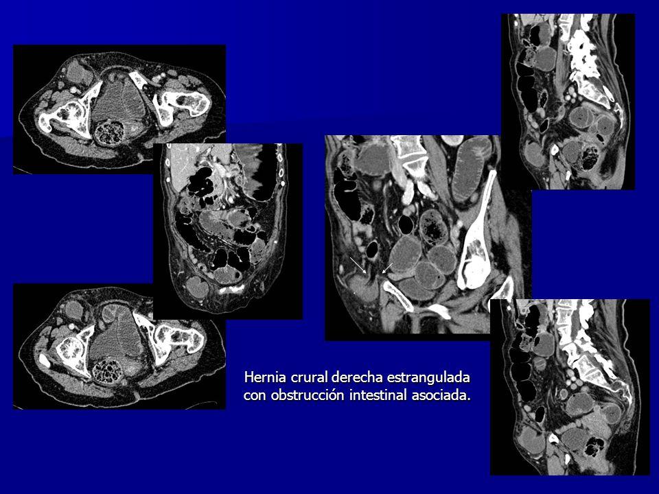 Hernia crural derecha estrangulada con obstrucción intestinal asociada.