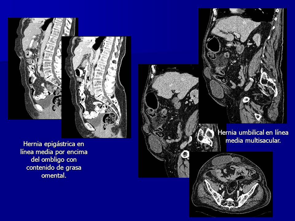 Hernia umbilical en línea media multisacular.