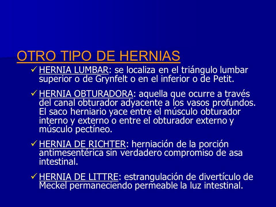 OTRO TIPO DE HERNIAS HERNIA LUMBAR: se localiza en el triángulo lumbar superior o de Grynfelt o en el inferior o de Petit.