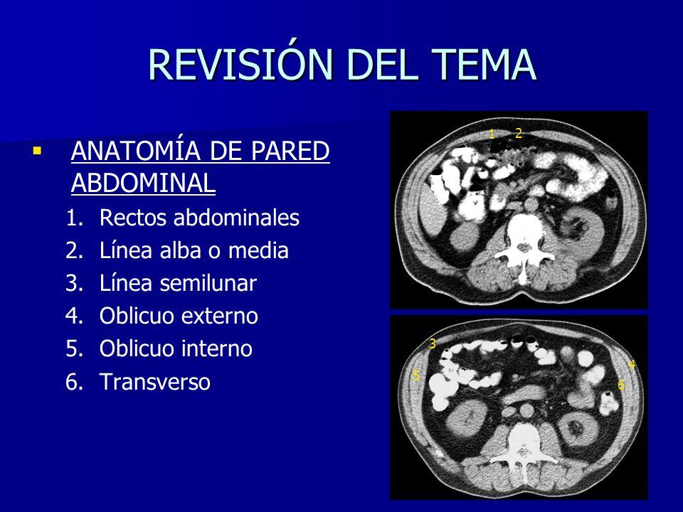REVISIÓN DEL TEMA ANATOMÍA DE PARED ABDOMINAL Rectos abdominales