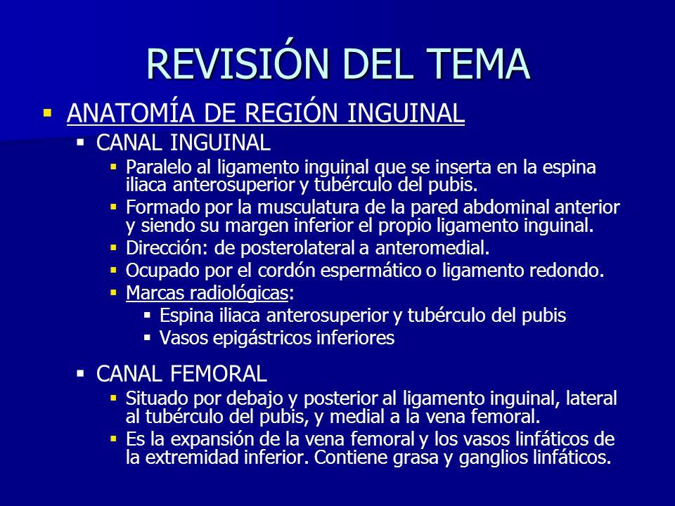 REVISIÓN DEL TEMA ANATOMÍA DE REGIÓN INGUINAL CANAL INGUINAL