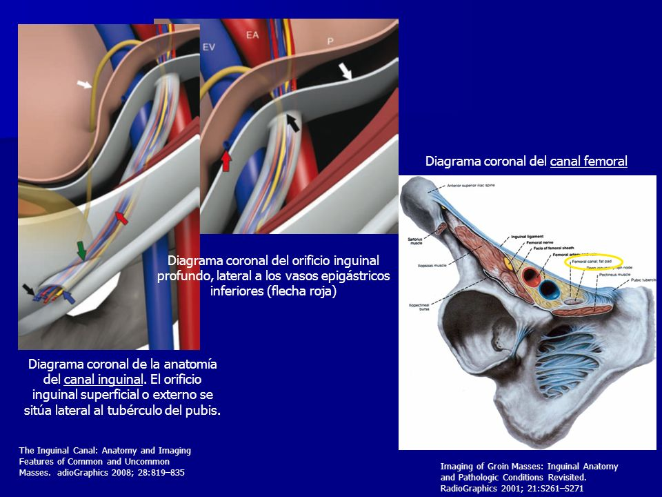 Diagrama coronal del canal femoral