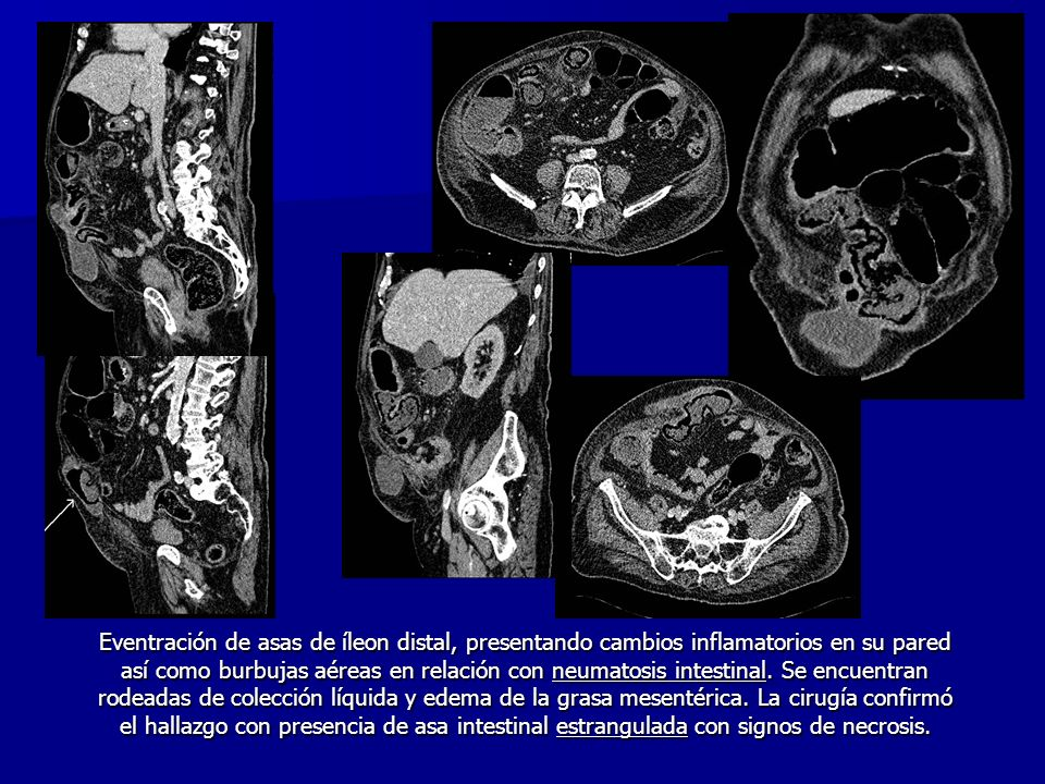 Eventración de asas de íleon distal, presentando cambios inflamatorios en su pared así como burbujas aéreas en relación con neumatosis intestinal.