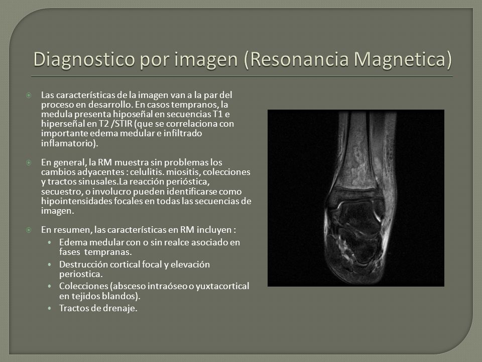 Diagnostico por imagen (Resonancia Magnetica)