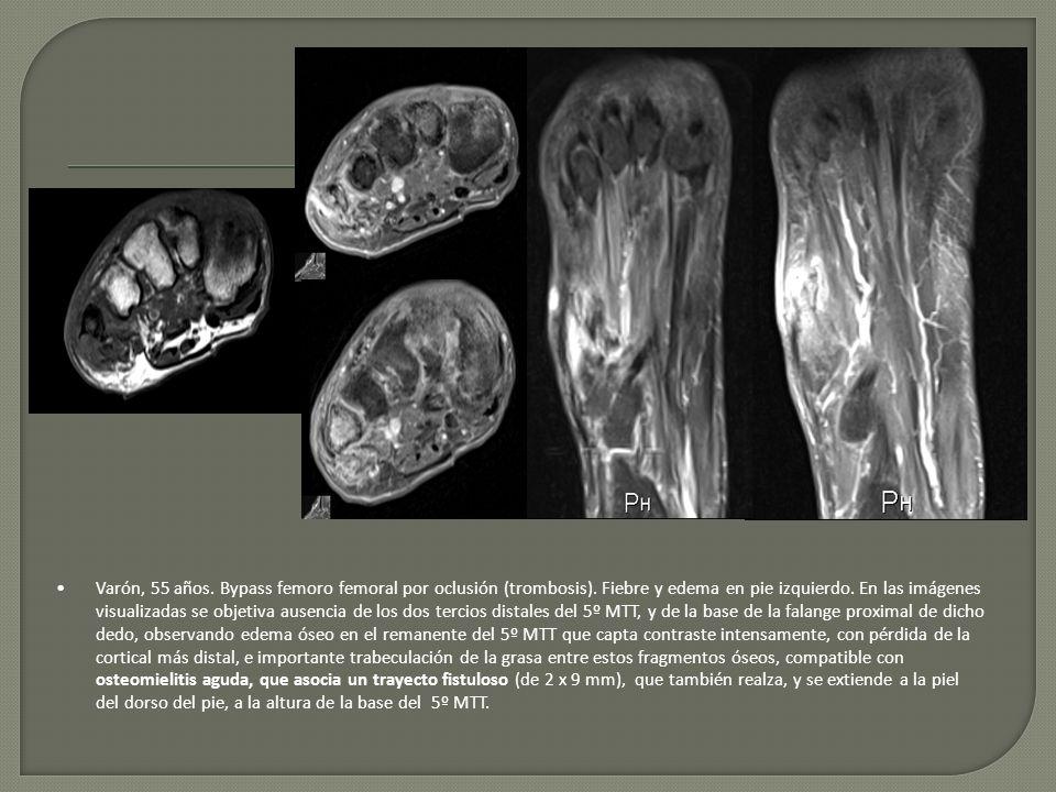 Varón, 55 años. Bypass femoro femoral por oclusión (trombosis)