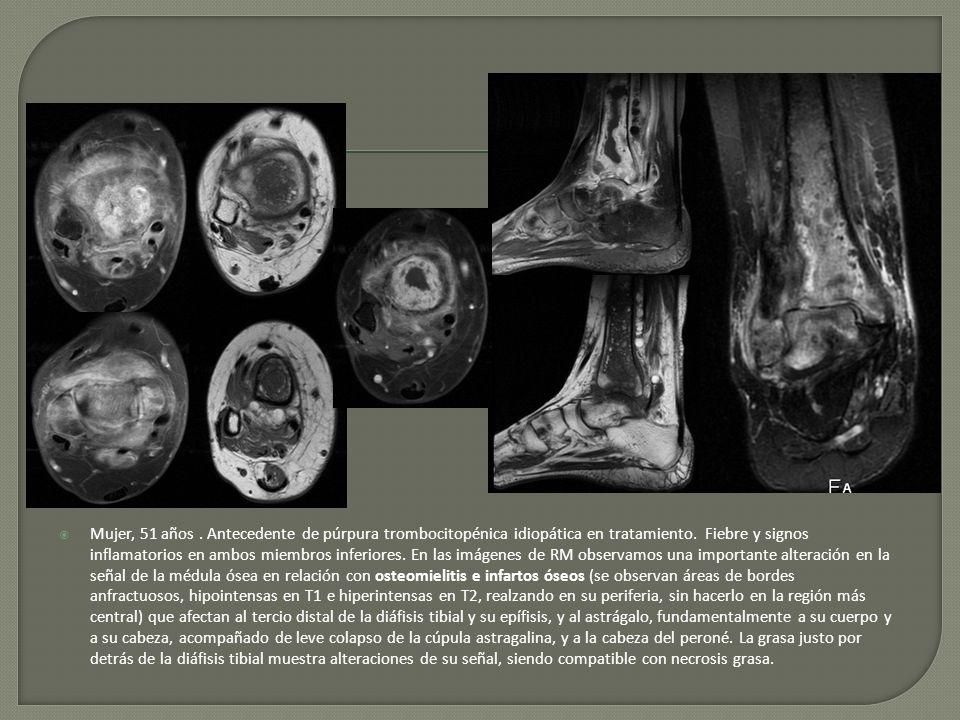 Mujer, 51 años . Antecedente de púrpura trombocitopénica idiopática en tratamiento.