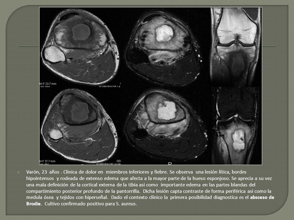 Varón, 23 años. Clinica de dolor en miembros inferiores y fiebre