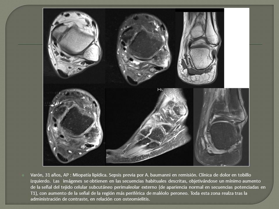 Varón, 31 años, AP : Miopatía lipídica. Sepsis previa por A