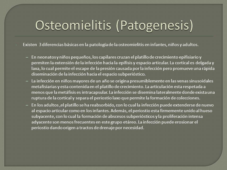 Osteomielitis (Patogenesis)