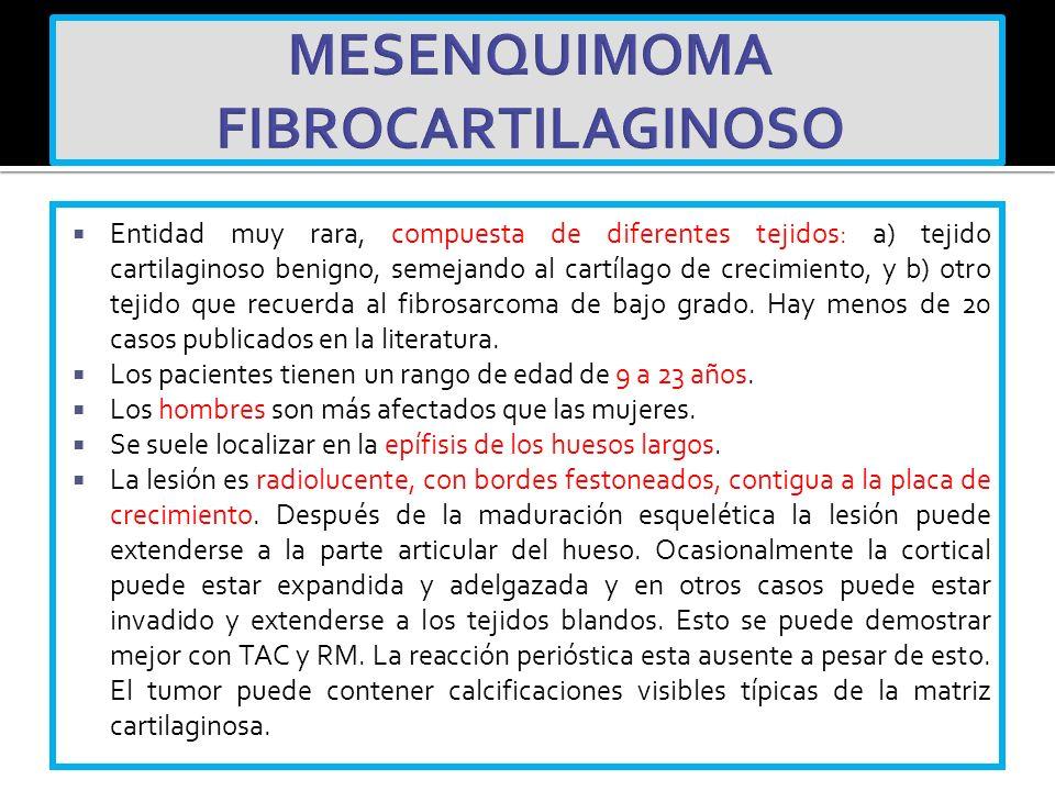 MESENQUIMOMA FIBROCARTILAGINOSO