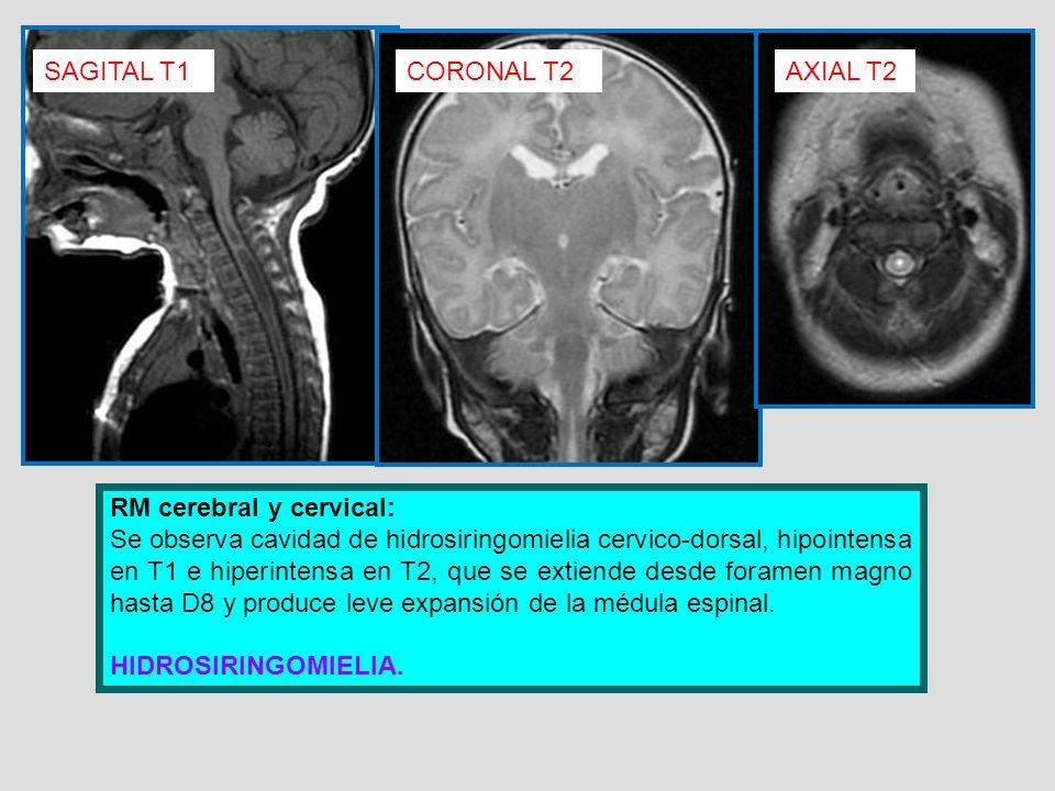 SAGITAL T1 CORONAL T2. AXIAL T2. RM cerebral y cervical: