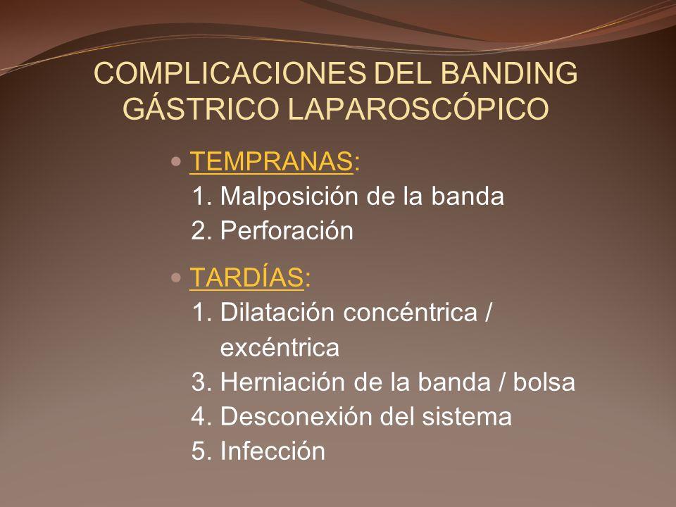 COMPLICACIONES DEL BANDING GÁSTRICO LAPAROSCÓPICO