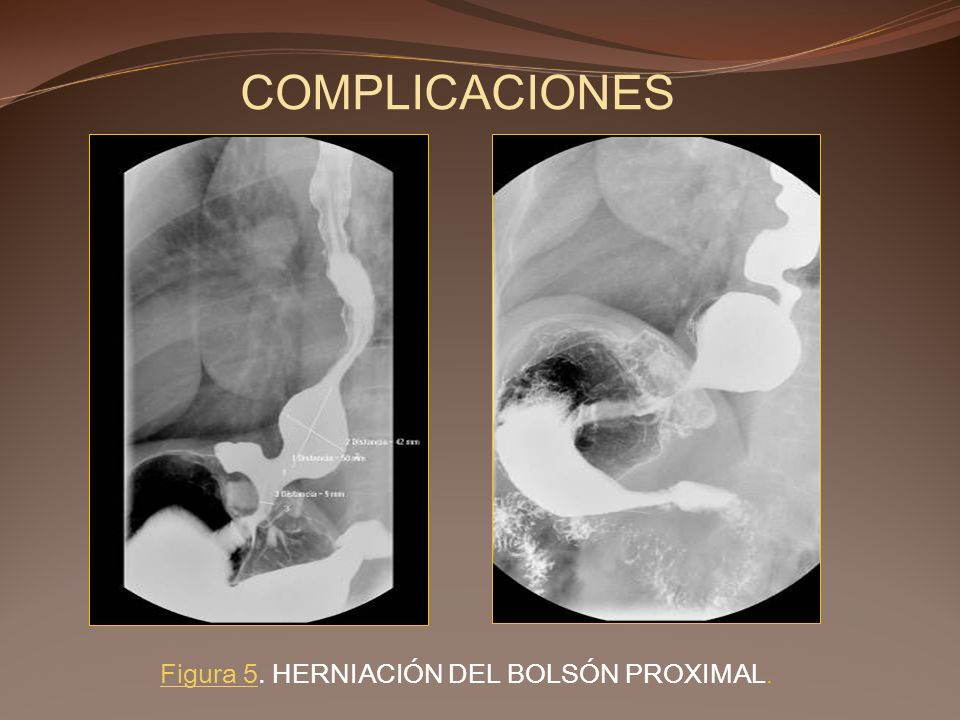 COMPLICACIONES Figura 5. HERNIACIÓN DEL BOLSÓN PROXIMAL.