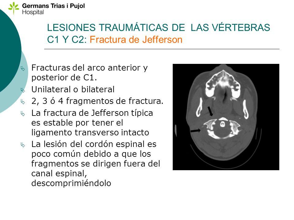 LESIONES TRAUMÁTICAS DE LAS VÉRTEBRAS C1 Y C2: Fractura de Jefferson
