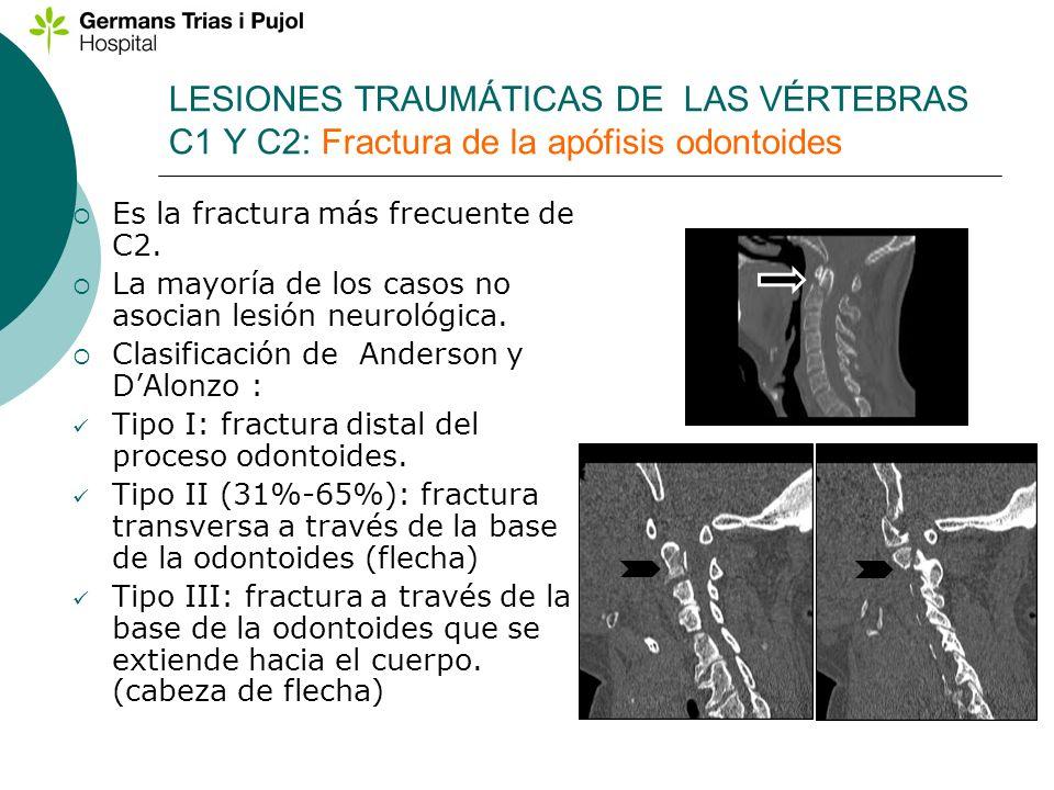 LESIONES TRAUMÁTICAS DE LAS VÉRTEBRAS C1 Y C2: Fractura de la apófisis odontoides