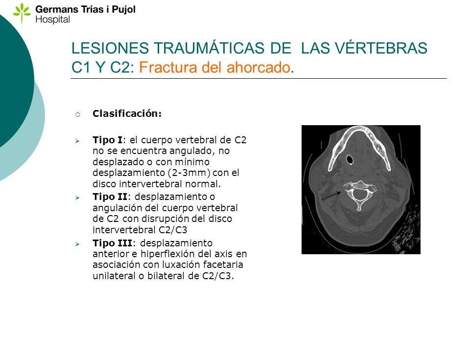 LESIONES TRAUMÁTICAS DE LAS VÉRTEBRAS C1 Y C2: Fractura del ahorcado.
