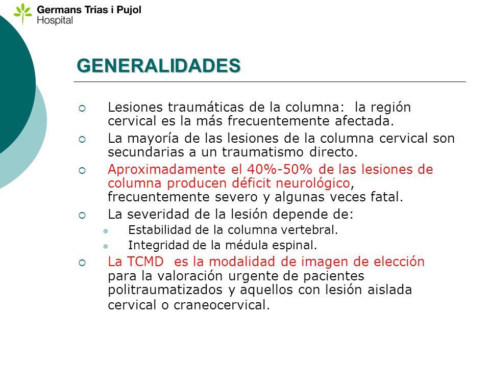 GENERALIDADES Lesiones traumáticas de la columna: la región cervical es la más frecuentemente afectada.