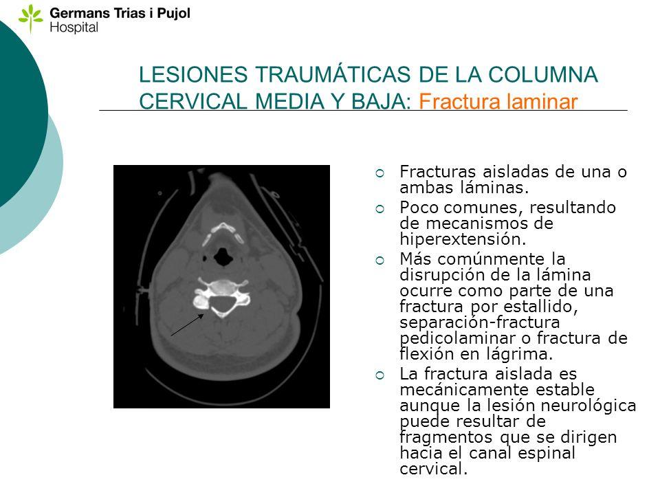 LESIONES TRAUMÁTICAS DE LA COLUMNA CERVICAL MEDIA Y BAJA: Fractura laminar