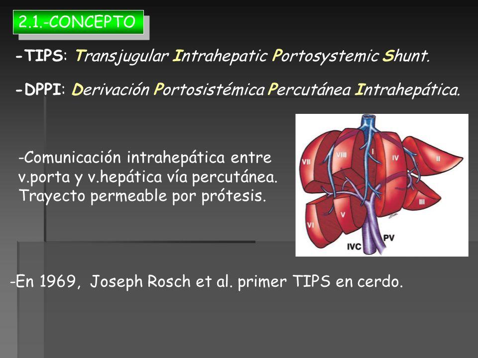 2.1.-CONCEPTO -TIPS: Transjugular Intrahepatic Portosystemic Shunt. -DPPI: Derivación Portosistémica Percutánea Intrahepática.