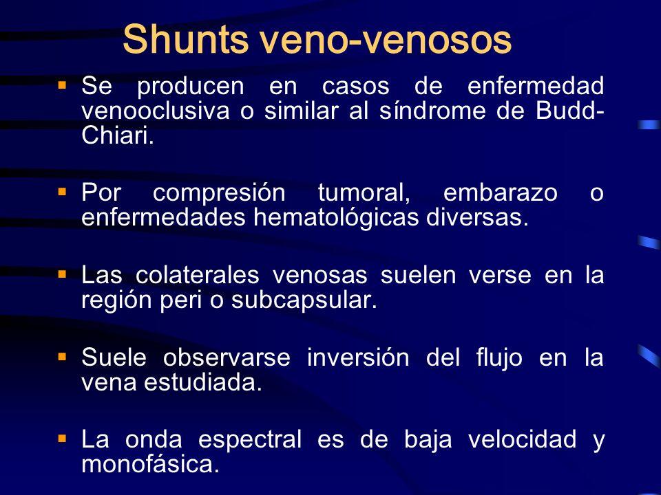 Shunts veno-venososSe producen en casos de enfermedad venooclusiva o similar al síndrome de Budd- Chiari.