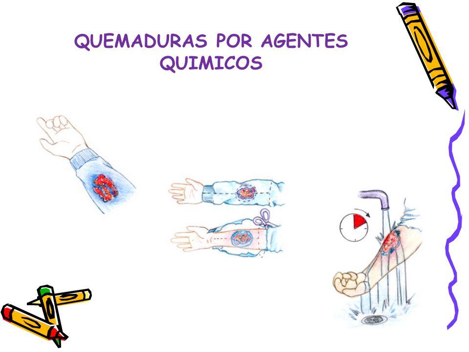 QUEMADURAS POR AGENTES QUIMICOS