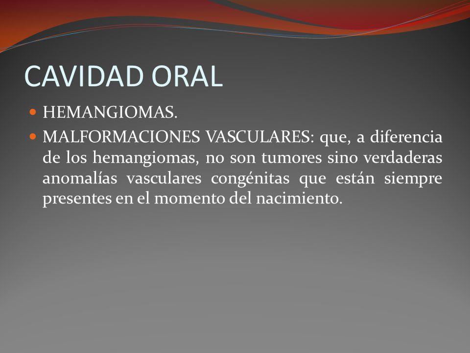 CAVIDAD ORAL HEMANGIOMAS.