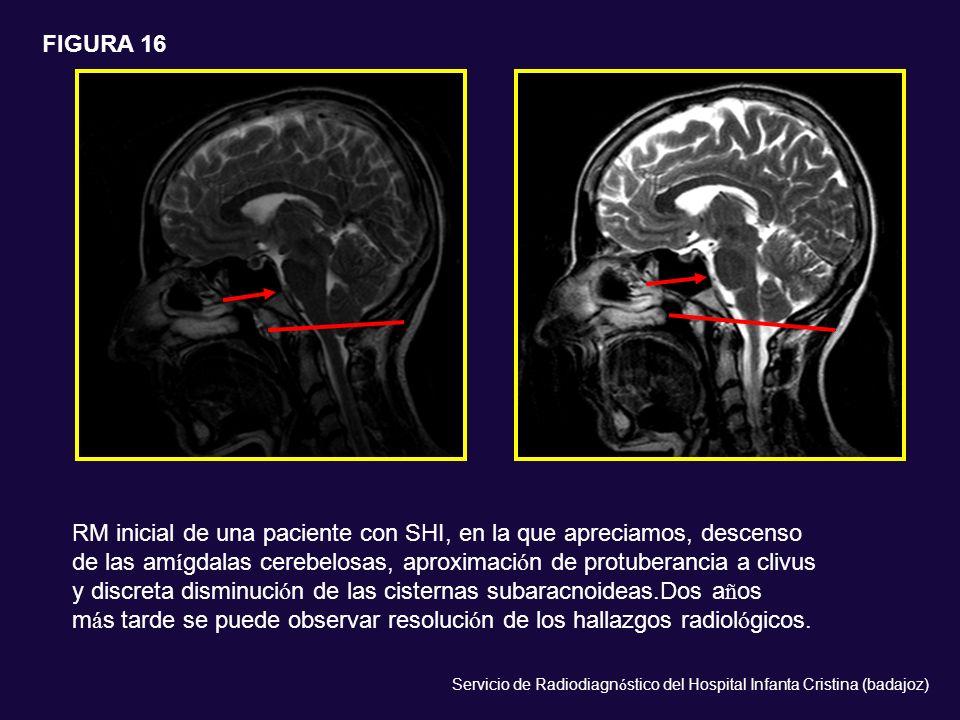 RM inicial de una paciente con SHI, en la que apreciamos, descenso