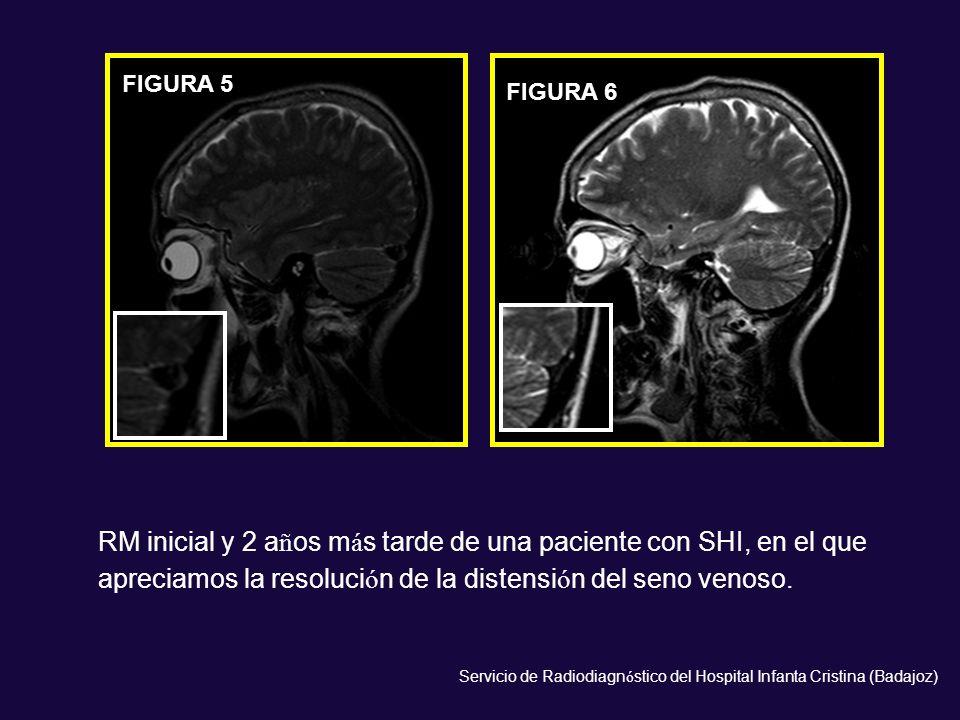RM inicial y 2 años más tarde de una paciente con SHI, en el que