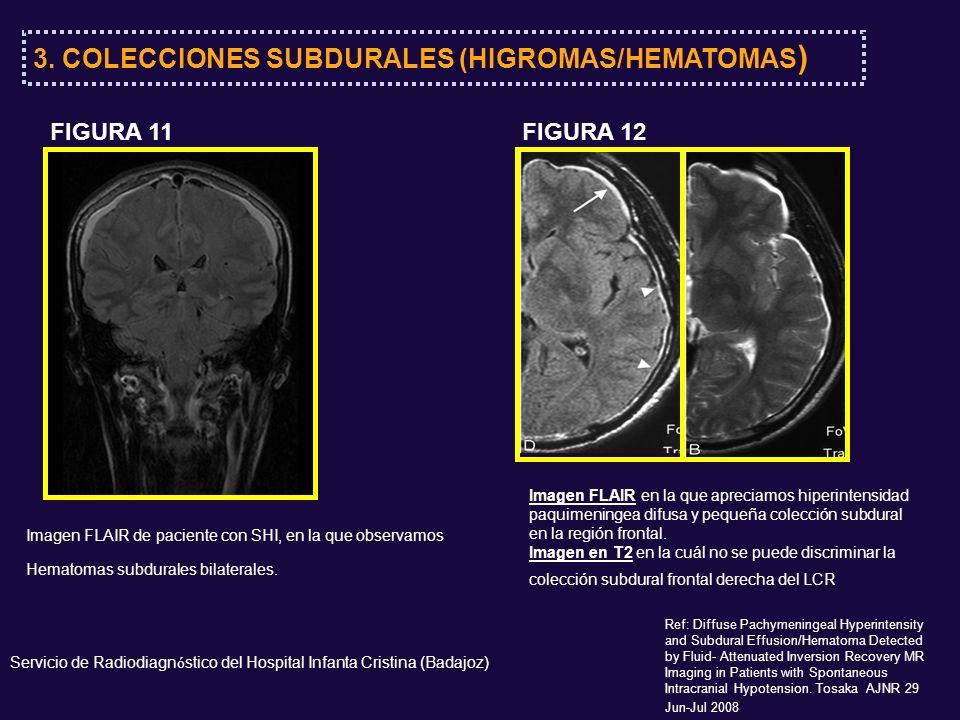 3. COLECCIONES SUBDURALES (HIGROMAS/HEMATOMAS)