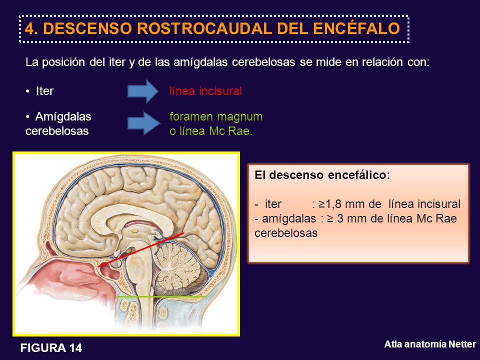 4. DESCENSO ROSTROCAUDAL DEL ENCÉFALO