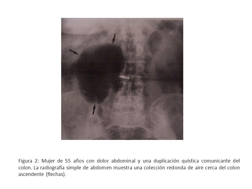 Figura 2: Mujer de 55 años con dolor abdominal y una duplicación quística comunicante del colon.
