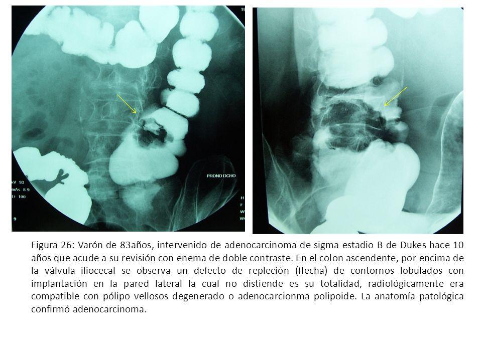 Figura 26: Varón de 83años, intervenido de adenocarcinoma de sigma estadio B de Dukes hace 10 años que acude a su revisión con enema de doble contraste.