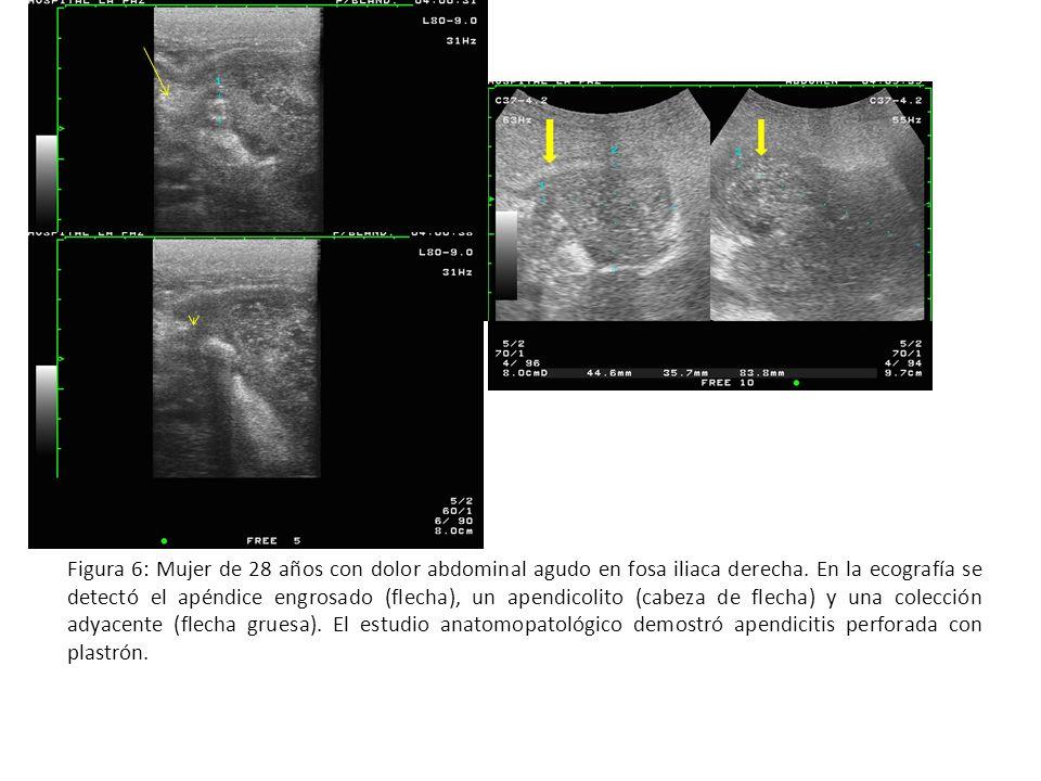 Figura 6: Mujer de 28 años con dolor abdominal agudo en fosa iliaca derecha.