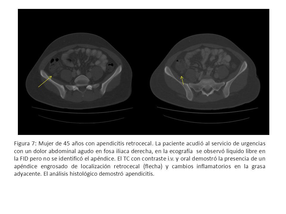 Figura 7: Mujer de 45 años con apendicitis retrocecal