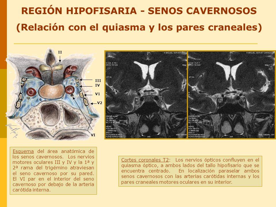 REGIÓN HIPOFISARIA - SENOS CAVERNOSOS