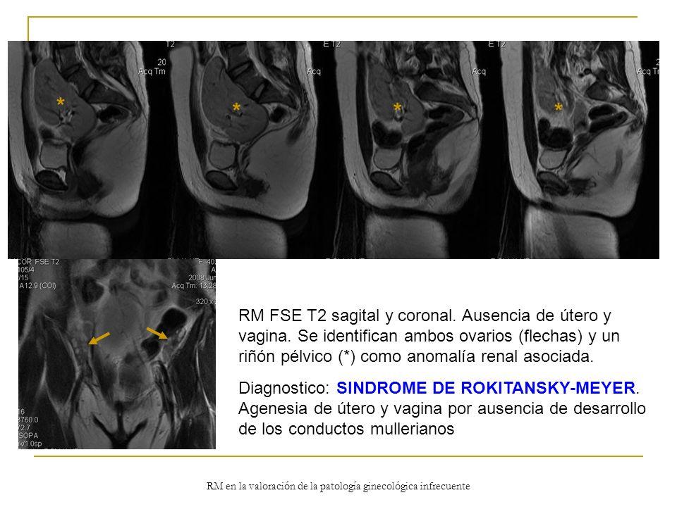 RM en la valoración de la patología ginecológica infrecuente